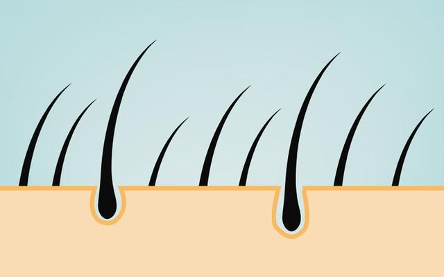 Was ist eine FUE-Haartransplantation